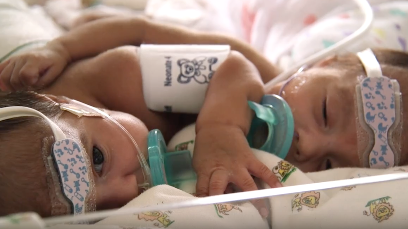 Conjoined twins Paisleigh and Paislyn were successfully separated at the University of Minnesota Masonic Children's Hospital