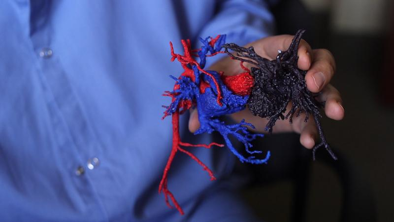 The Medical Devices Center created a 3-D model of the hearts of conjoined twins who were separated at the University of Minnesota Masonic Children's Hospital