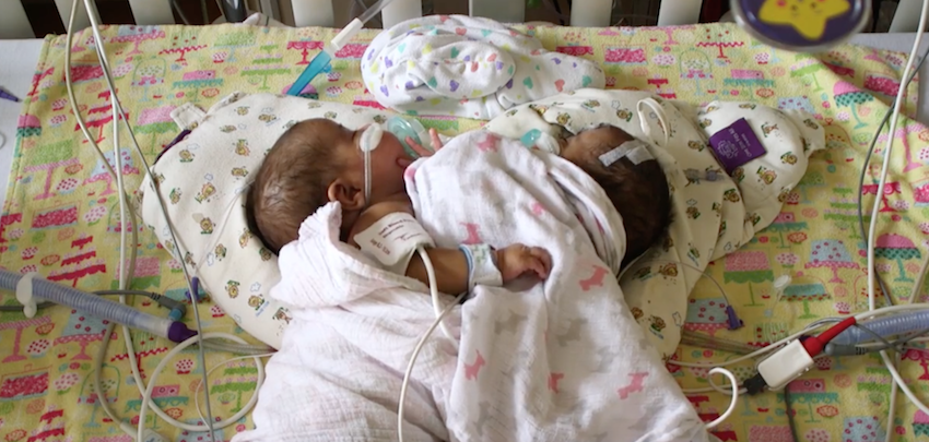 Conjoined twins Paisleigh and Paislyn were separated at the University of Minnesota Masonic Children's Hospital